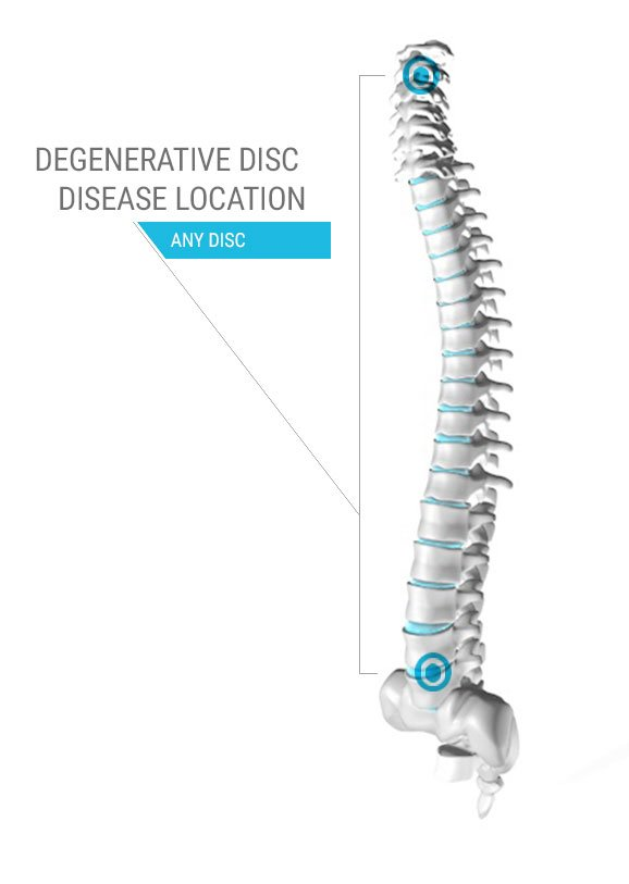 Degenerative Disc Disease Location Diagram